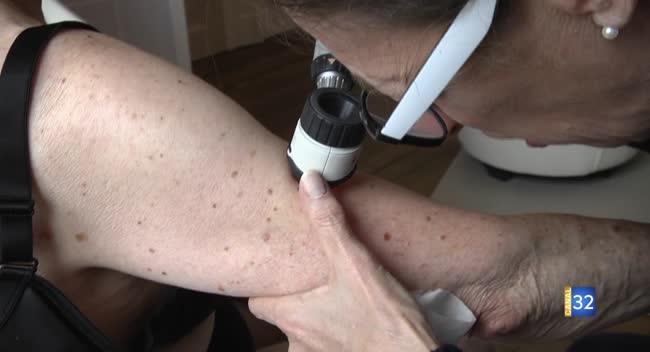 Canal 32 - Prévenir le cancer de la peau : l'intérêt du dépistage