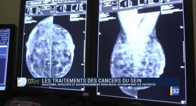 Canal 32 - Question Santé - le traitement du cancer du sein